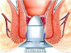 Aranyerek műtéti megoldása II.